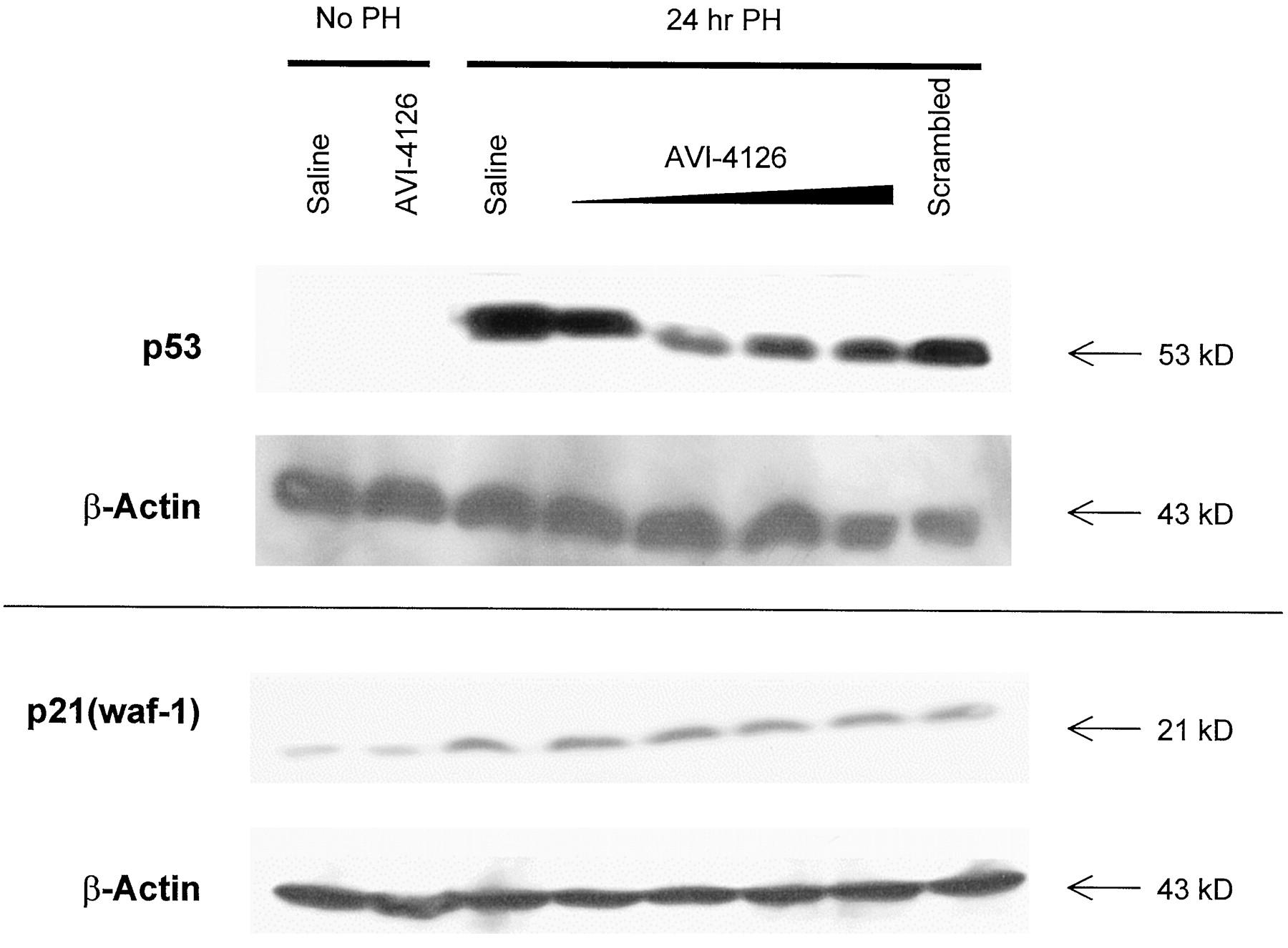 c-Myc Antisense Limits Rat Liver Regeneration and Indicates Role for