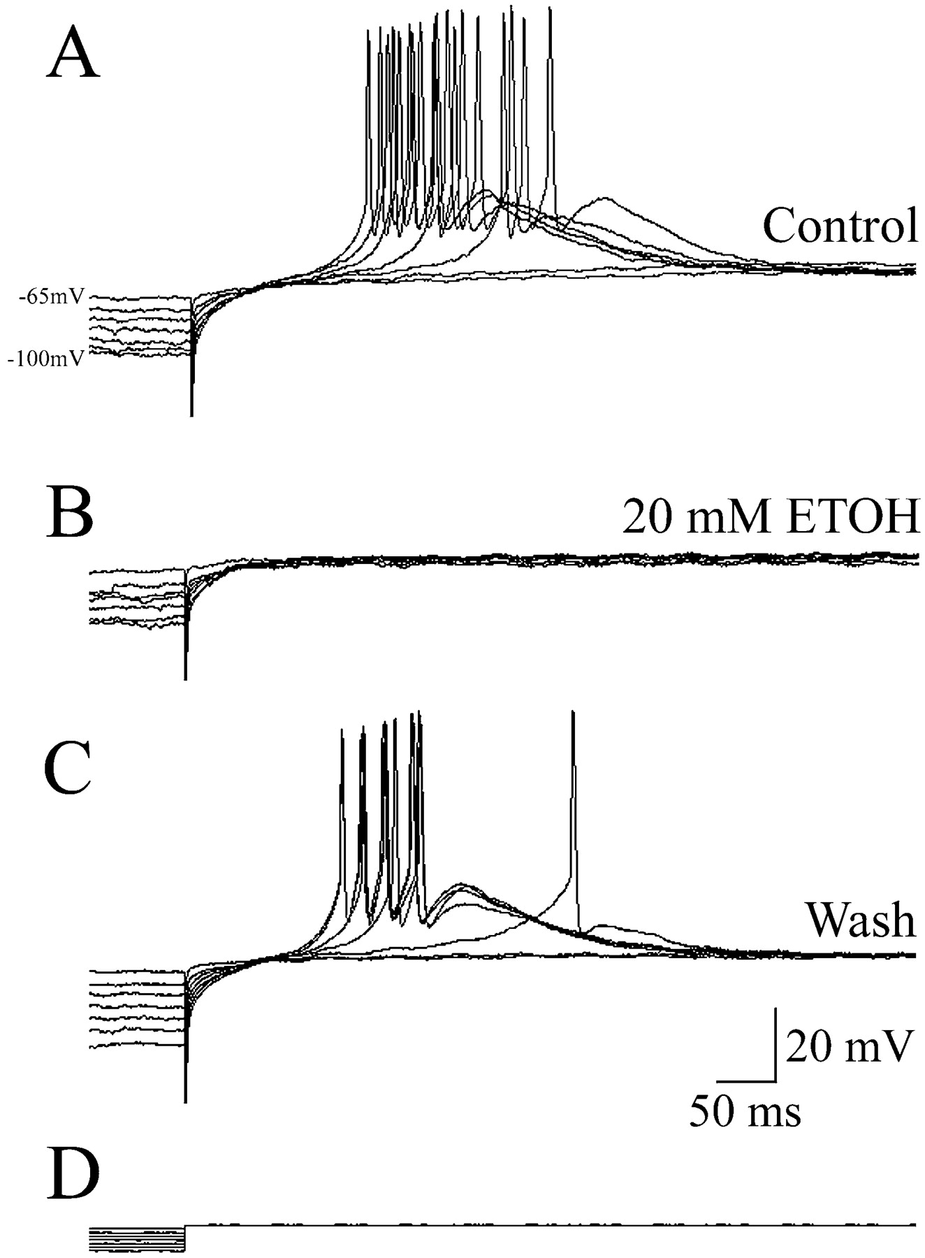 Ethanol Influences On Native T Type Calcium Current In Thalamic Figure 318 Solving For Applied Voltage A Series Circuit Download