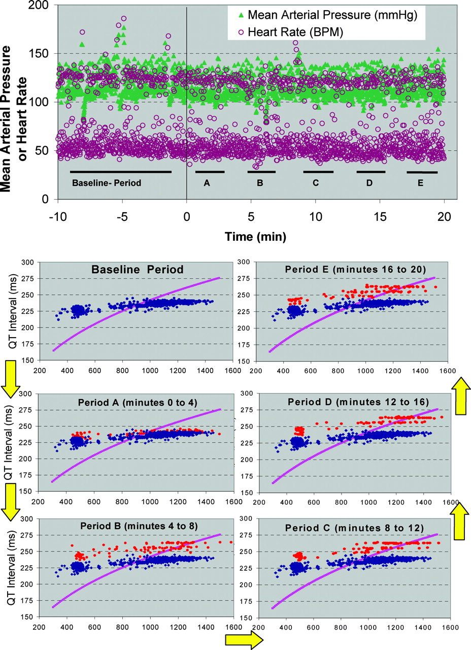 Dynamic Beat-to-Beat Modeling of the QT-RR Interval