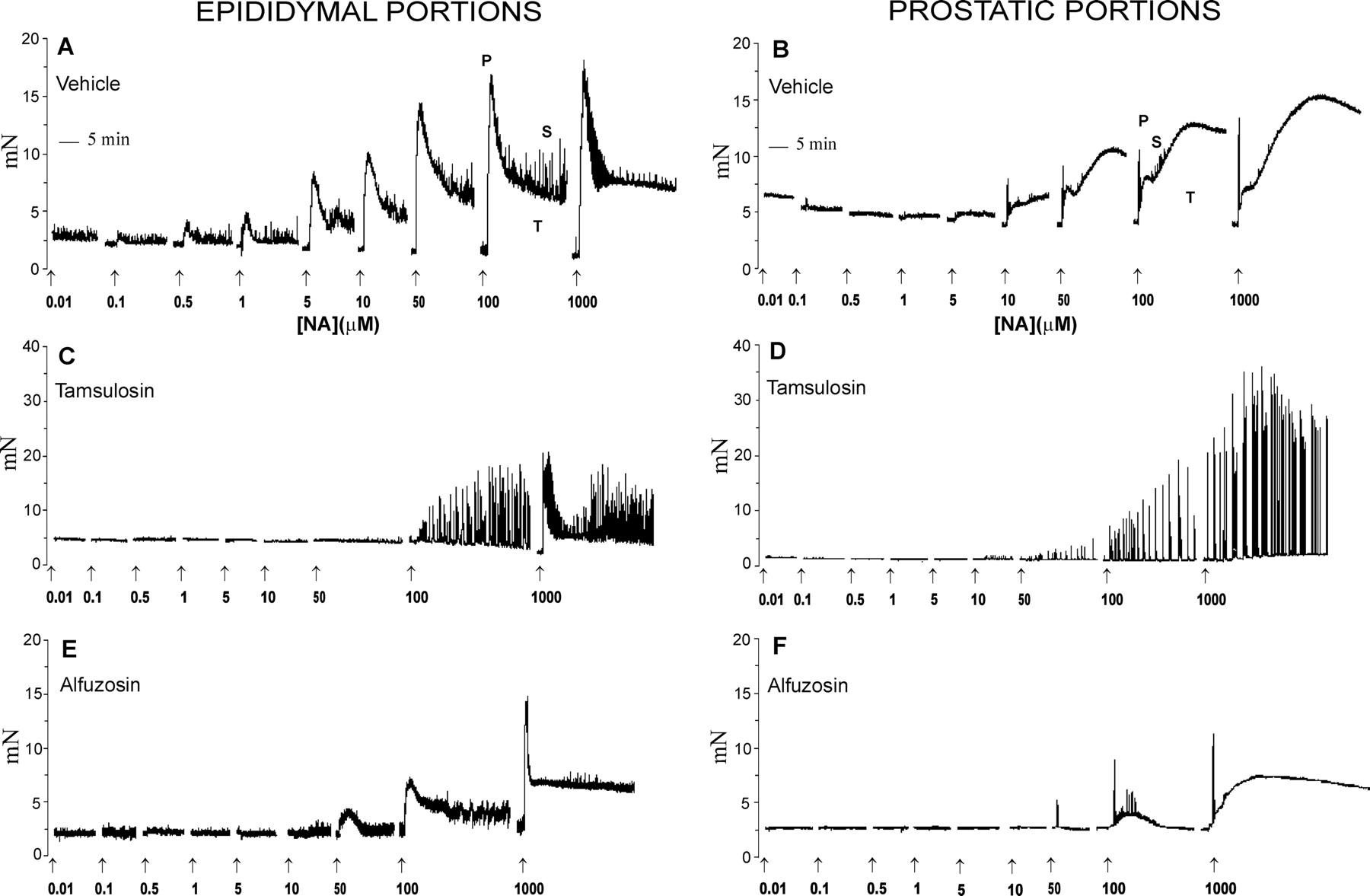 Evaluation Of Tamsulosin And Alfuzosin Activity In The Rat Vas