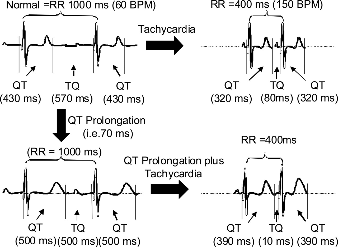 QT Prolongation Modifies Dynamic Restitution and Hysteresis