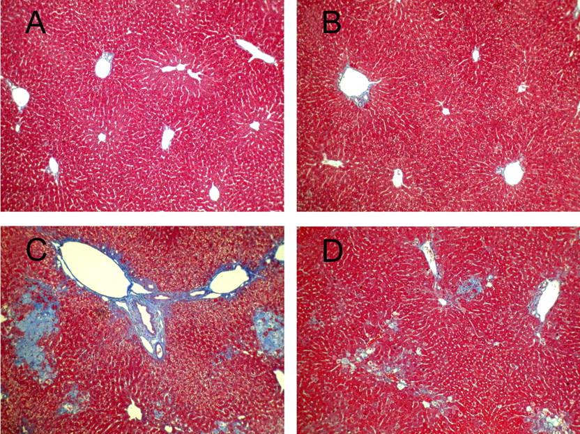 masson trichrome stain liver