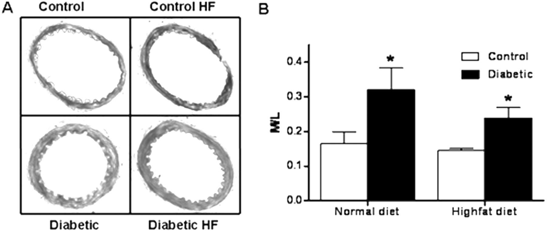 Differential Effects Of Diet Induced Dyslipidemia And Hyperglycemia