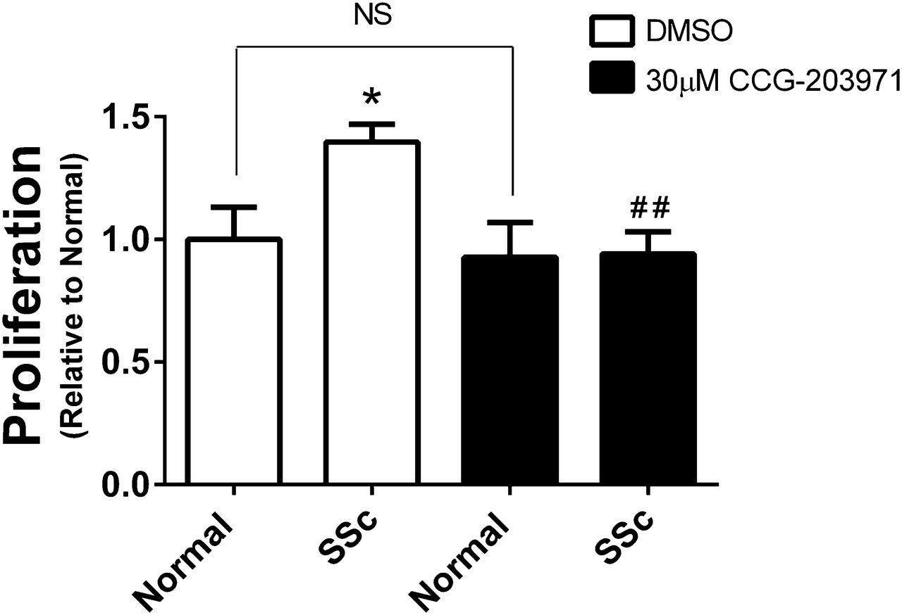 Targeting the Myofibroblast Genetic Switch: Inhibitors of Myocardin