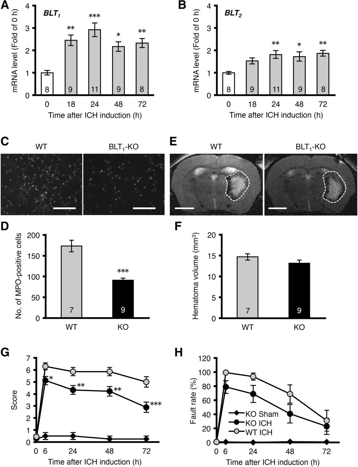 Ich B inhibition of leukotriene b4 mitigates intracerebral
