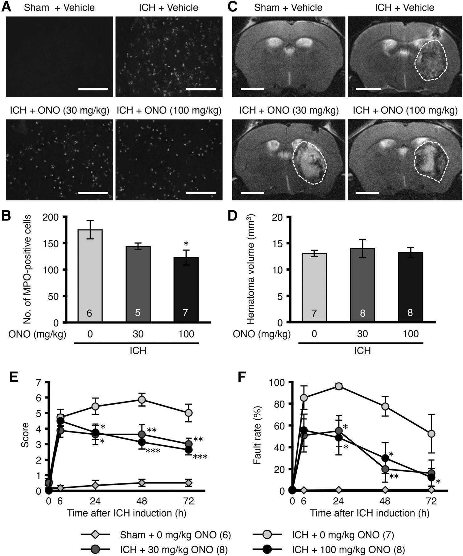 Inhibition of Leukotriene B4 Action Mitigates Intracerebral