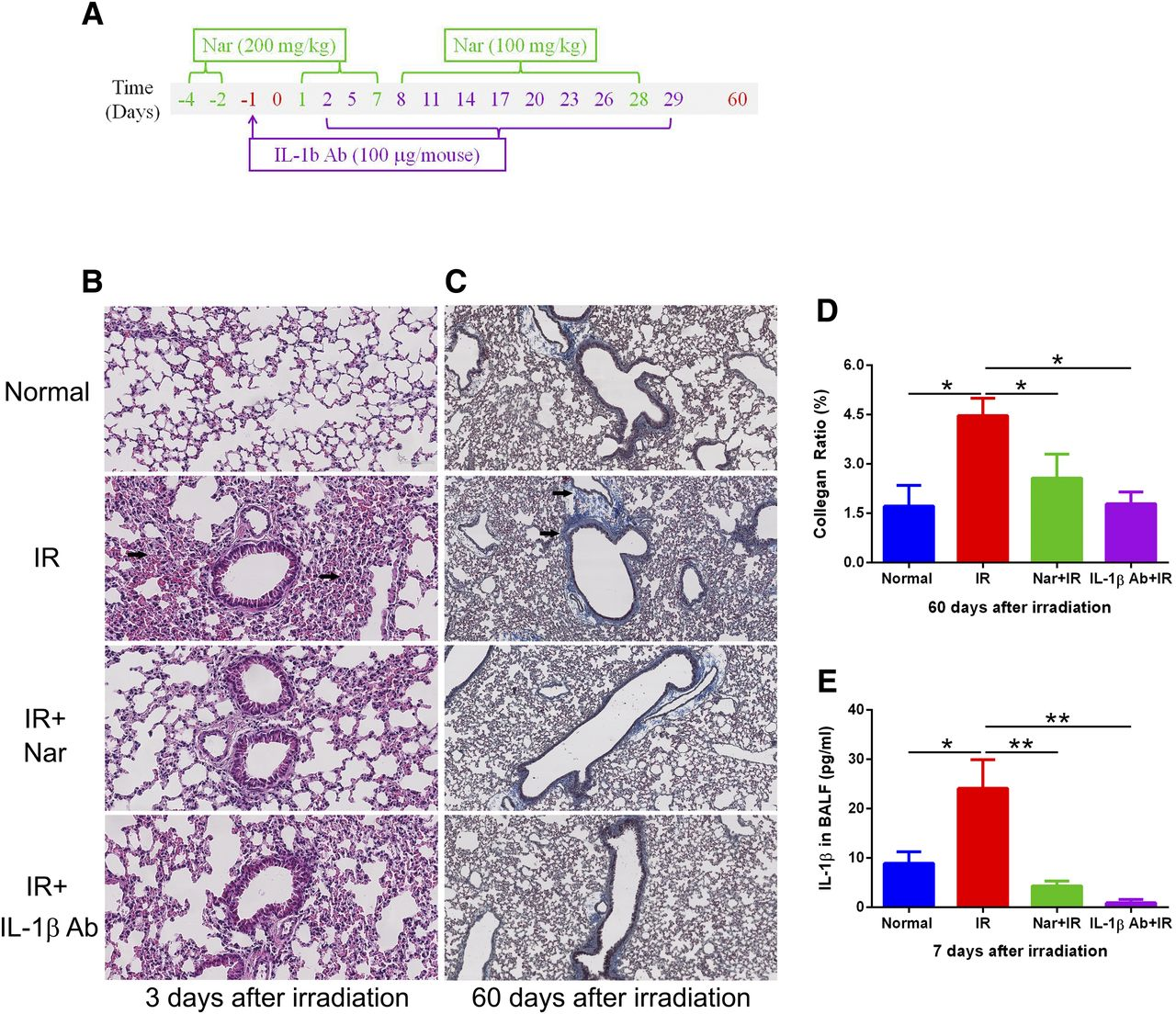 Naringenin Ameliorates Radiation-Induced Lung Injury by