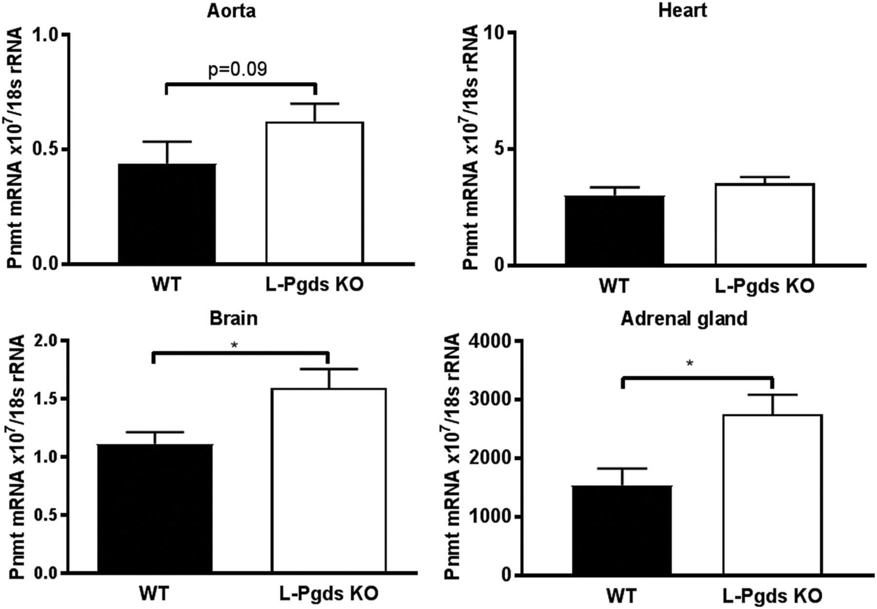 Lipocalin Like Prostaglandin D Synthase But Not Hemopoietic Free Download Grg Series Wiring Diagram Figure