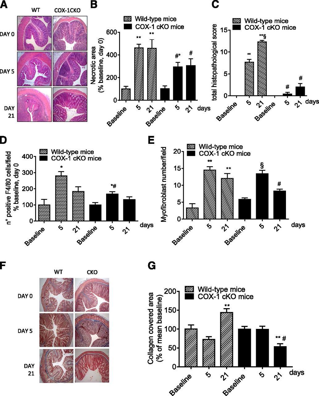 Platelet-Specific Deletion of Cyclooxygenase-1 Ameliorates