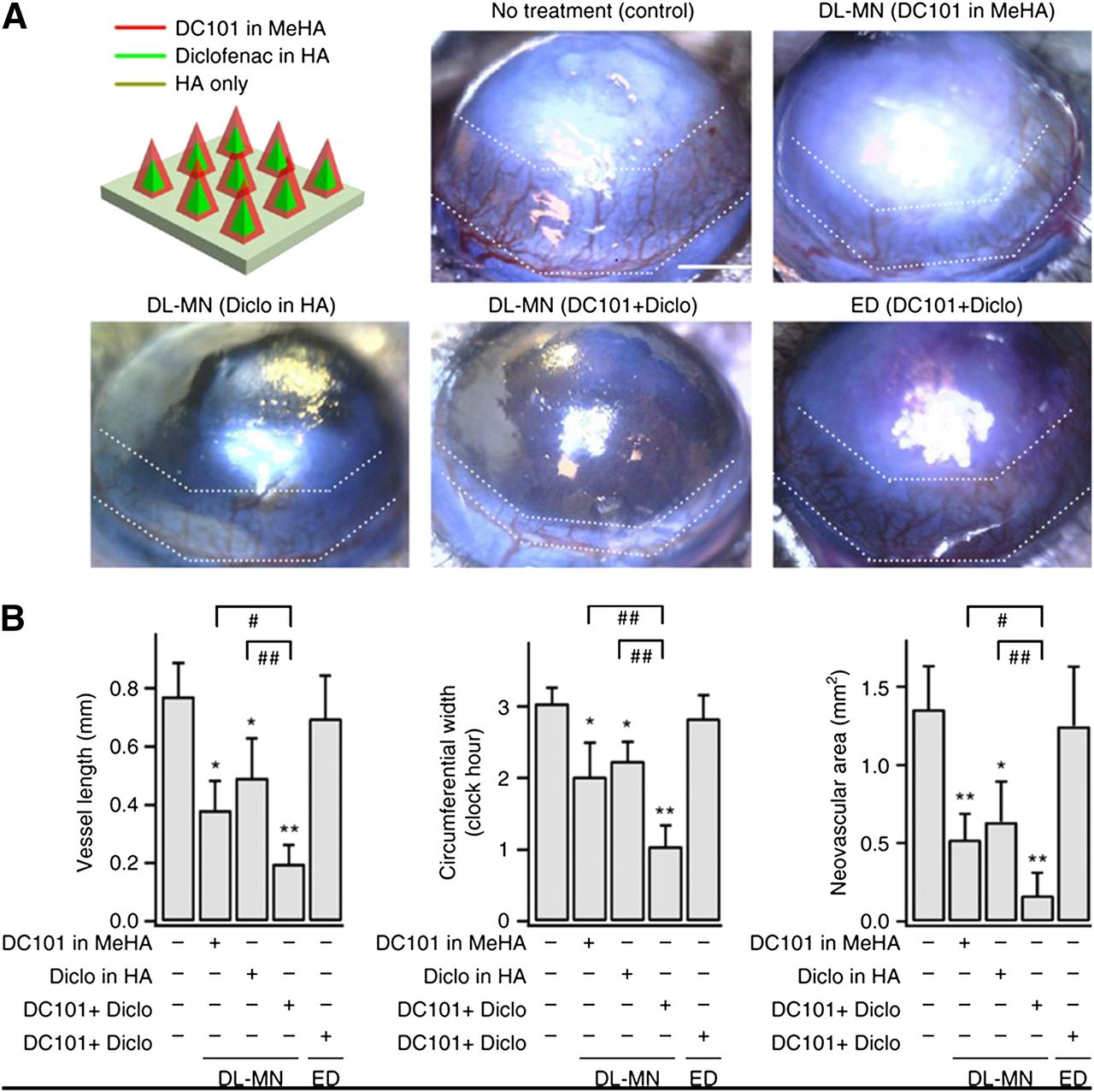 Ocular Drug Delivery: Present Innovations and Future